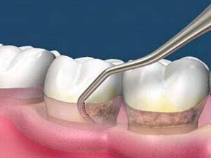 洗牙操作不妥会有哪些副作用?
