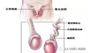 上饶弋阳一16岁男孩睾丸发生扭转,要不是他们就成了死丸之人