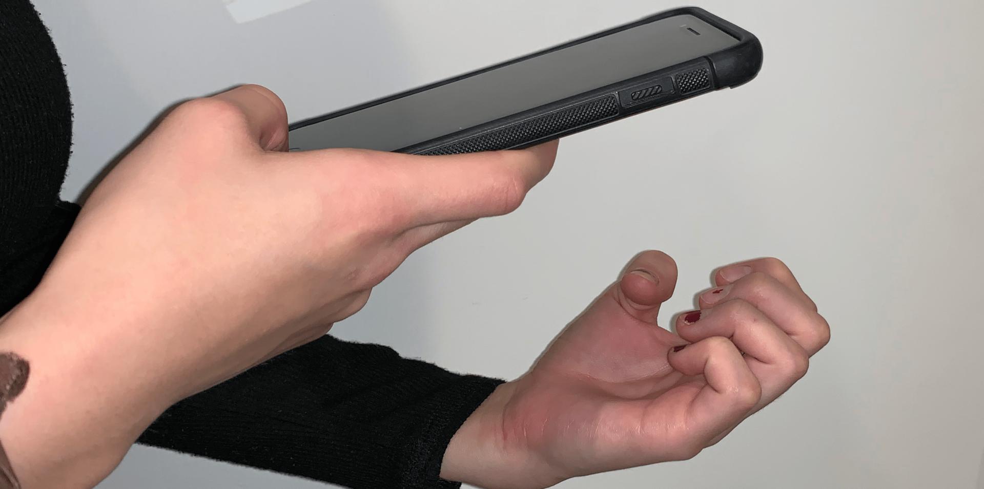 研究人员开发跨平台应用 通过指甲照片检测贫血