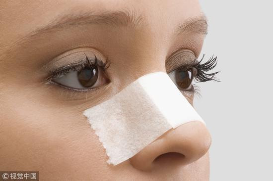 鼻翼肥大怎么办 鼻翼宽大、肥大该怎么办?