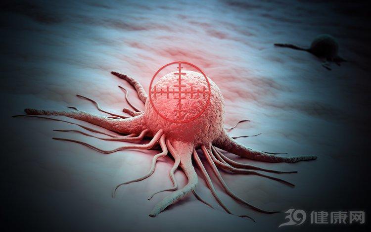 患同一种癌,为什么存活时间不一样?给你3个解释