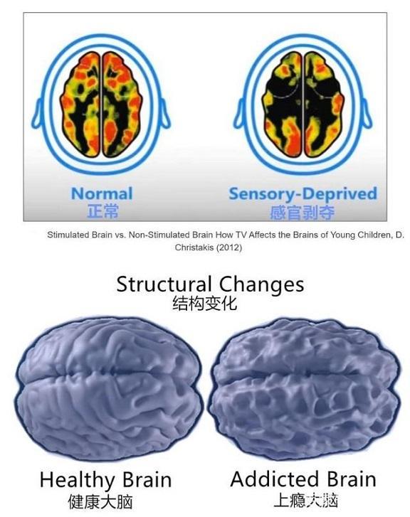 往往会干扰其大脑的正常发育,大脑的结构和功能也会发生负面的变化.图片