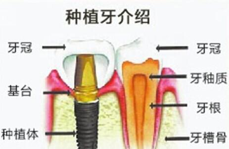 后天种牙的价格要多少?价格是不是很高?