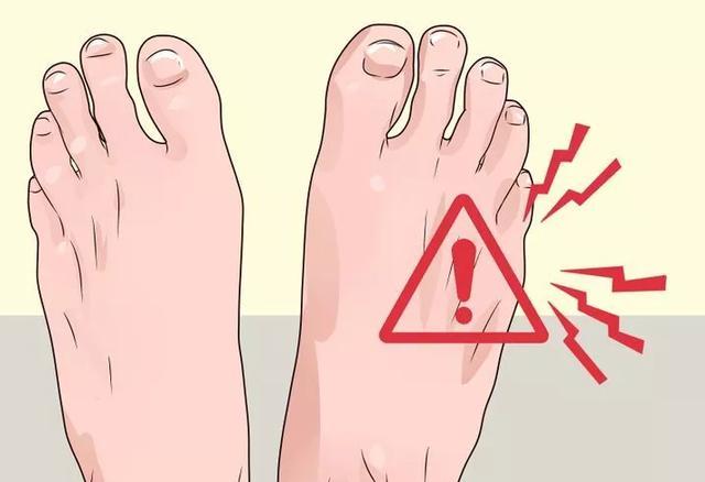 走路经常疼痛怎么办-小心!糖尿病正在蚕食你的双脚!
