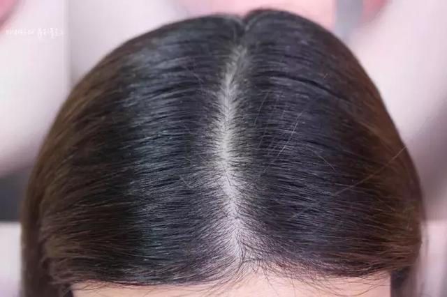 长期扎很紧的马尾,拉扯头发容易伤害头皮,长久以来也会导致发际线后退图片