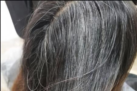 揪头发能延缓生白发?教你一招图片