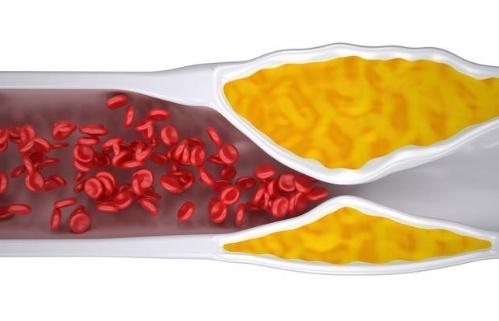 高血脂是导致血管阻塞的元凶巨恶吗?教你2招有用下降胆固醇