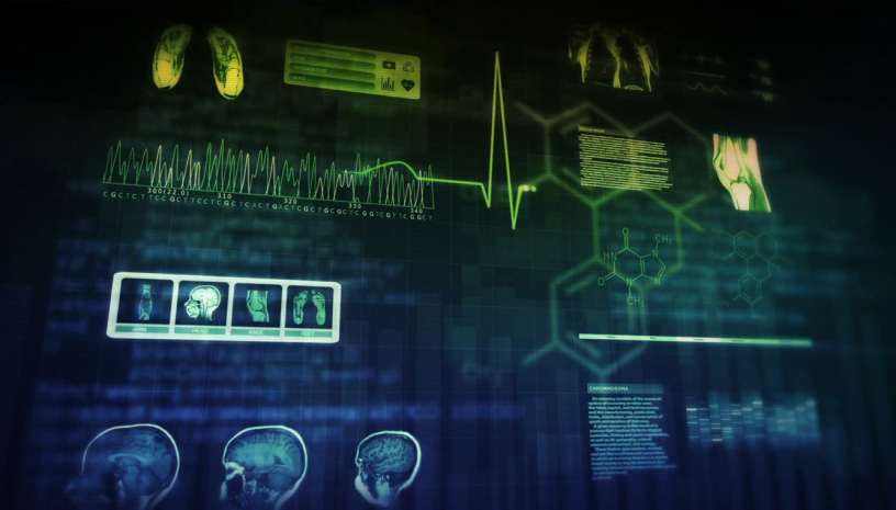 IBM Watson for Oncology 图:IBM