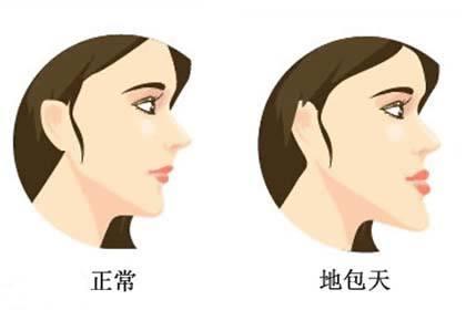 地包天问题对口腔健康的影响大吗?