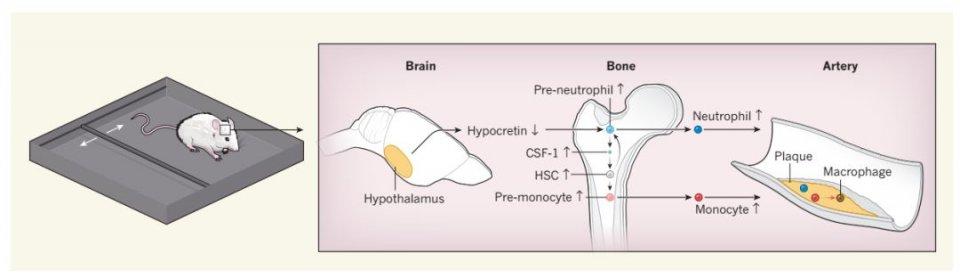 哈佛医学院与麻省总医院:睡眠不规律,会加速动脉粥样硬化的形成