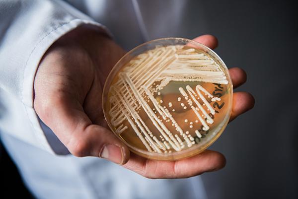 多国蔓延!超级真菌90天内可夺命,国内会受影响吗?