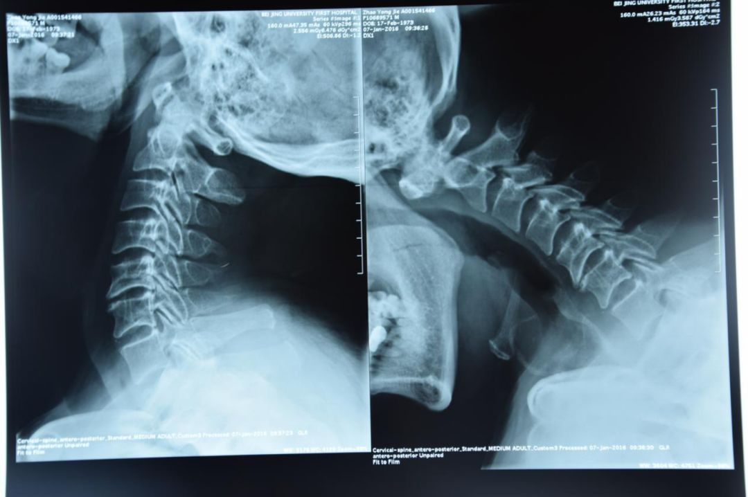 柔道教练颈椎严重脱位,这台异常危险的手术最后成没成?